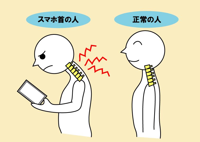 スマホ首と正常の人